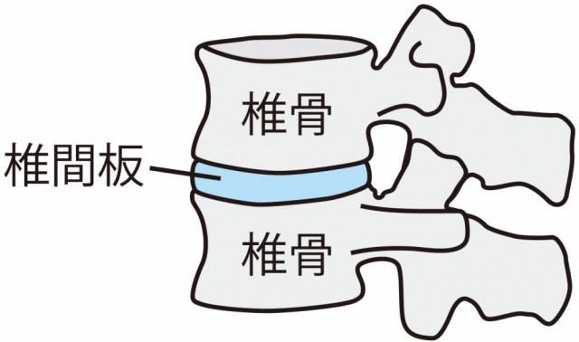 頚椎椎間板イラスト