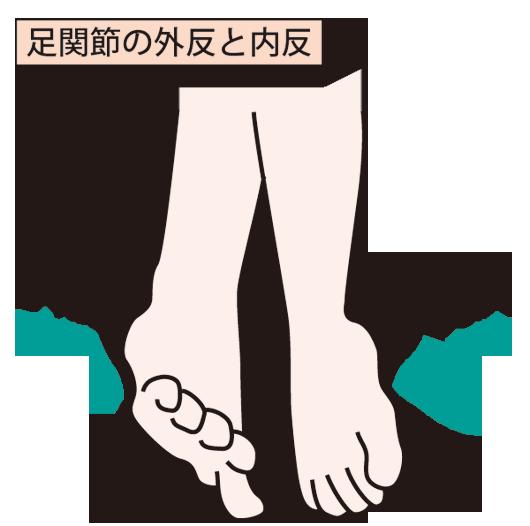 捻挫の画像