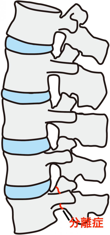 踵を抑える人の画像