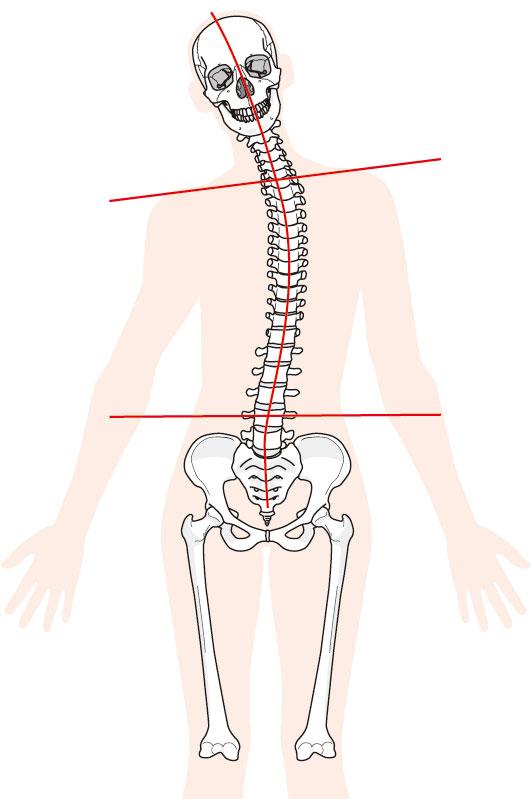 当院での「三叉神経痛」に対するアプローチ
